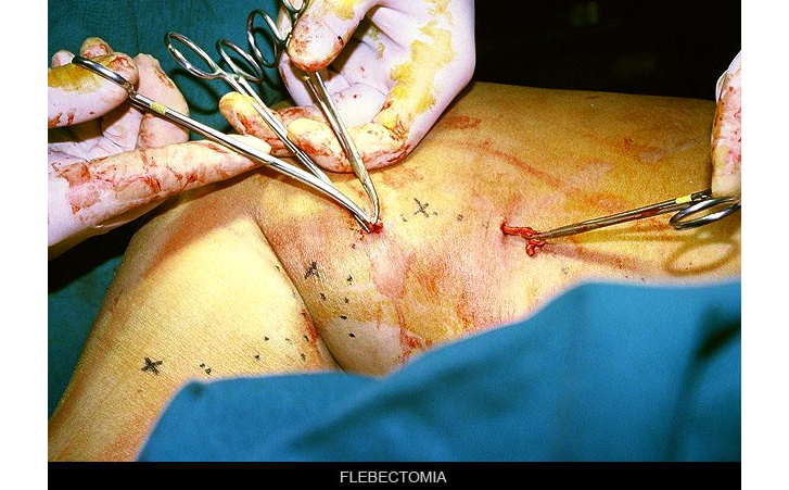 flebectomia
