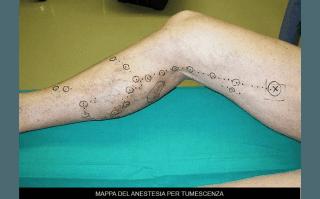 mappa di anestesia per tumescenza
