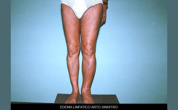 edema linfatico arto sinistro