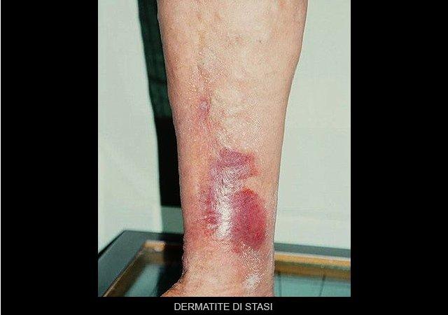 dermatite di stasi