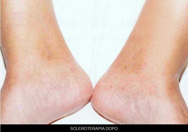 scleroterapia dopo