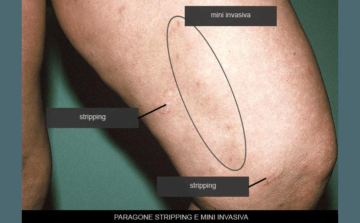 paragone stripping e micro invasiva