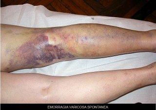 emorragia varicosa spontanea