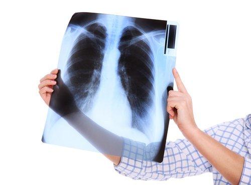radiografia toracica