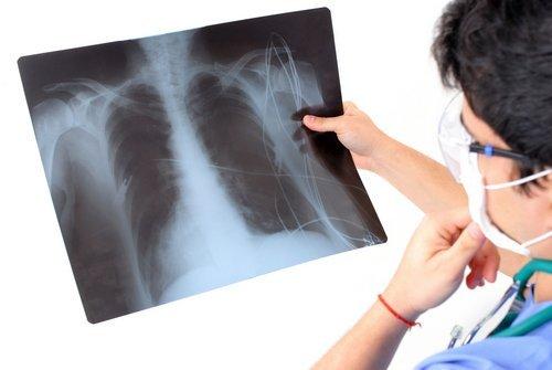 dottore scruta radiografia polmonare