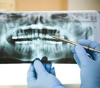 parodonzia