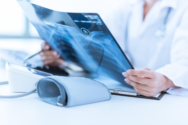 un medico osserva una radiografia