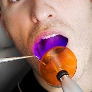 protesi su impianti, conservativa, estetica dentale