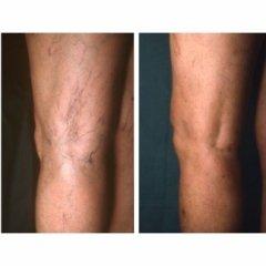 eliminazione capillari, trattamento capillari