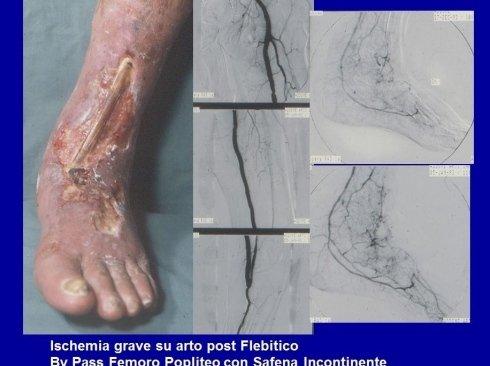 Ulcera Mista