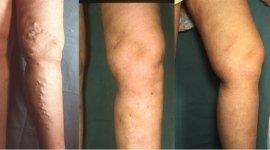 vericectomia, asportazione delle vene dilatate