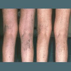 ulcere varicose