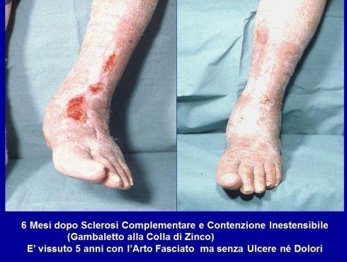 Ulcera Mista 2