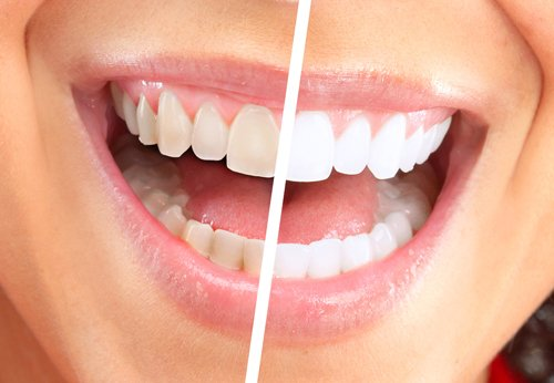 Woman's smile before & after visiting cosmetic dentist in Lincoln, NE