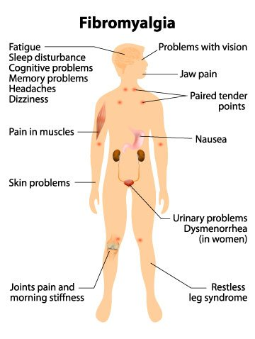 Fibromyalgia Remedy in Manhattan, New York City