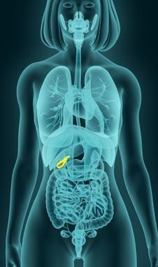 Gallbladder Remedy in Manhattan, New York City
