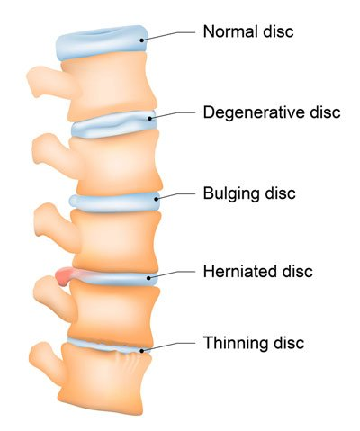 Types of NYC Chiropractic Treatments