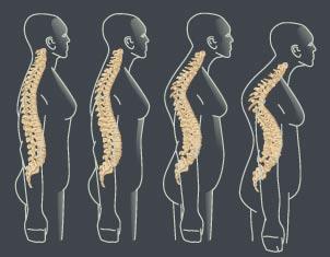 Chiropractic Adjustment in Manhattan NYC