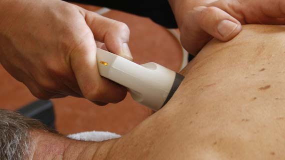 cold laser therapy for tennis elbow