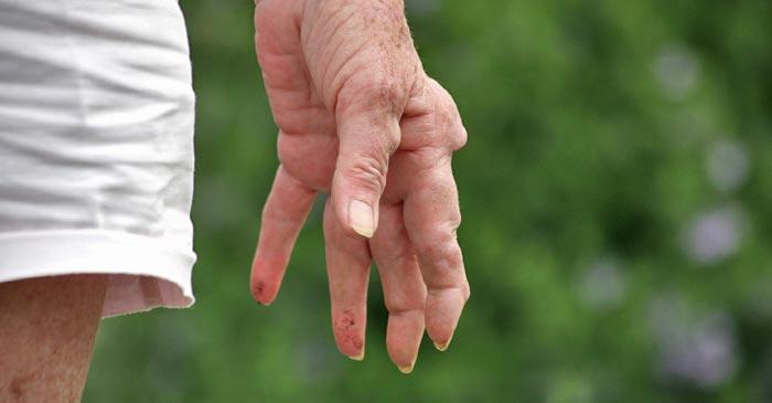 Rheumatoid Arthritis Remedies NYC - Dr. Louis Granirer Holistic Chiropractor