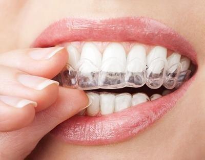 trattamenti ortodontici Bari