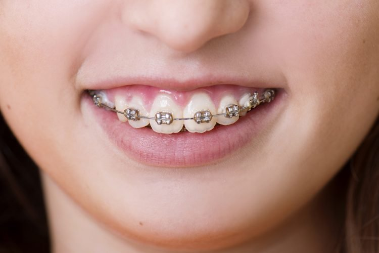 The Advantages Of Invisalign Over Braces