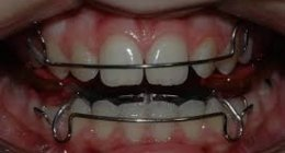 cure dentali bambini, sbiancamento denti, igiene orale