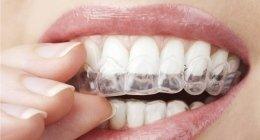 odontoiatra, ortodonzia infantile, protesi dentarie