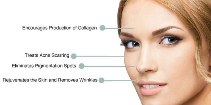 Micro-Needling Boston Rhode Island