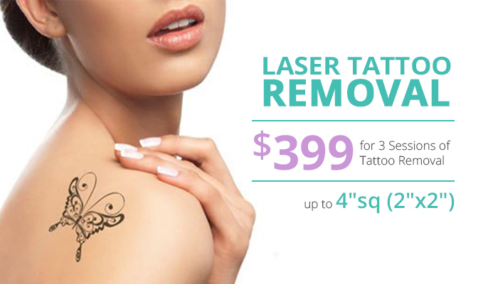 Laser Tattoo Removal Deal