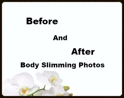 Non-surgical-body-contouring-boston