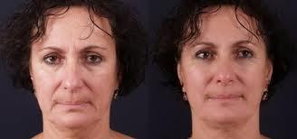 Full Face Skin Tightening Before & After