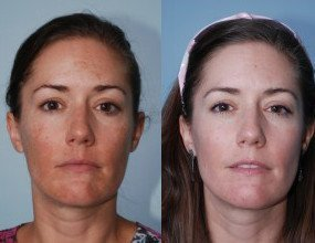 Melasma Skin Correction