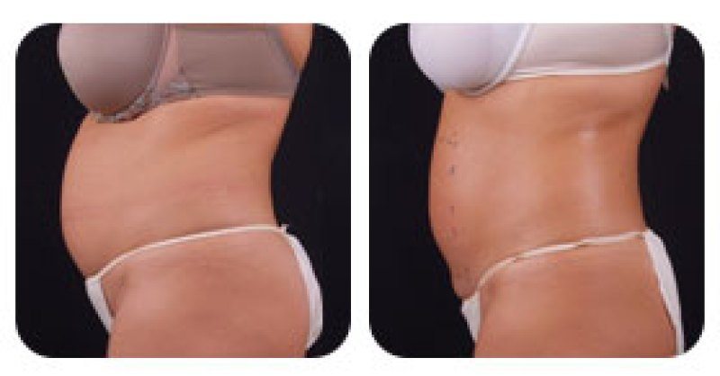 Exilis-Before-After-Belly-Fat-Removal-Boston-RI