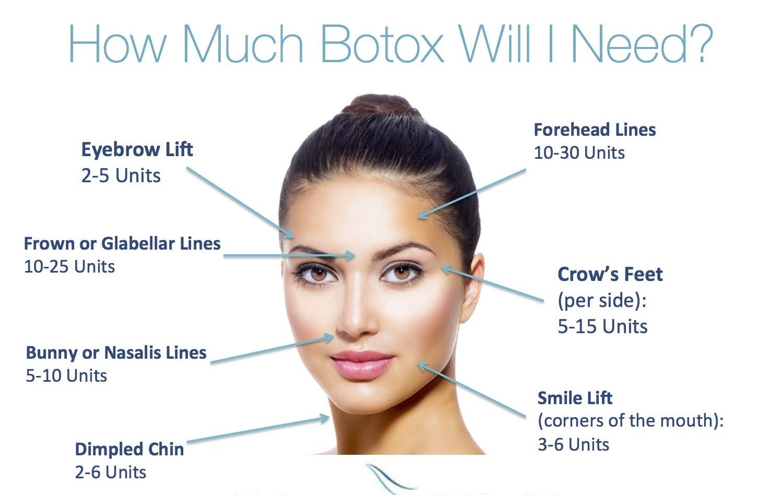 Botox®  Near Me HowMuchBotoxwillINeed-44b7a611
