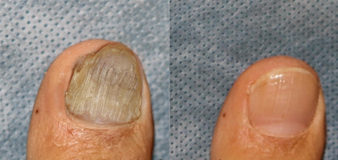 Laser nail fungus treatment