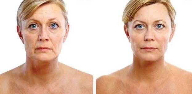 Advanced Laser Facial with Laser Skin Tightening