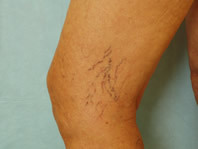 Leg-Spider-Vein-Removal-Andover