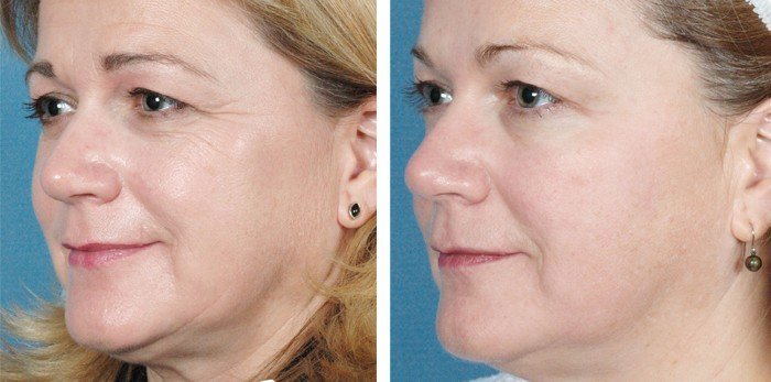 Facial Skin - The Top 7 Tips to Prevent and/or Restore Your Aging Skin
