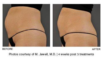 Ultrashape-Power-Belly-Fat-Removal-Boston-RI