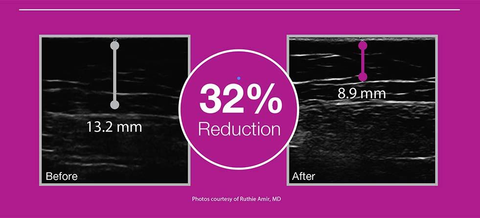 33%-Fat-Reduction-UltraShape