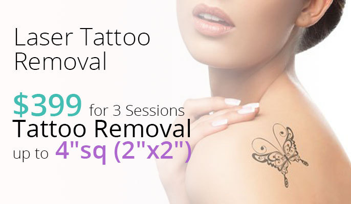 Laser Tattoo Removal - New Patient Special