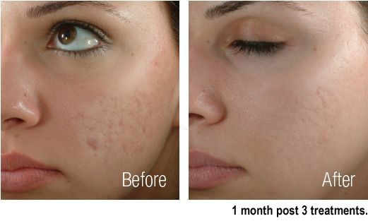 Acne scar treatment how to get rid of acne scars with laser ccuart Choice Image