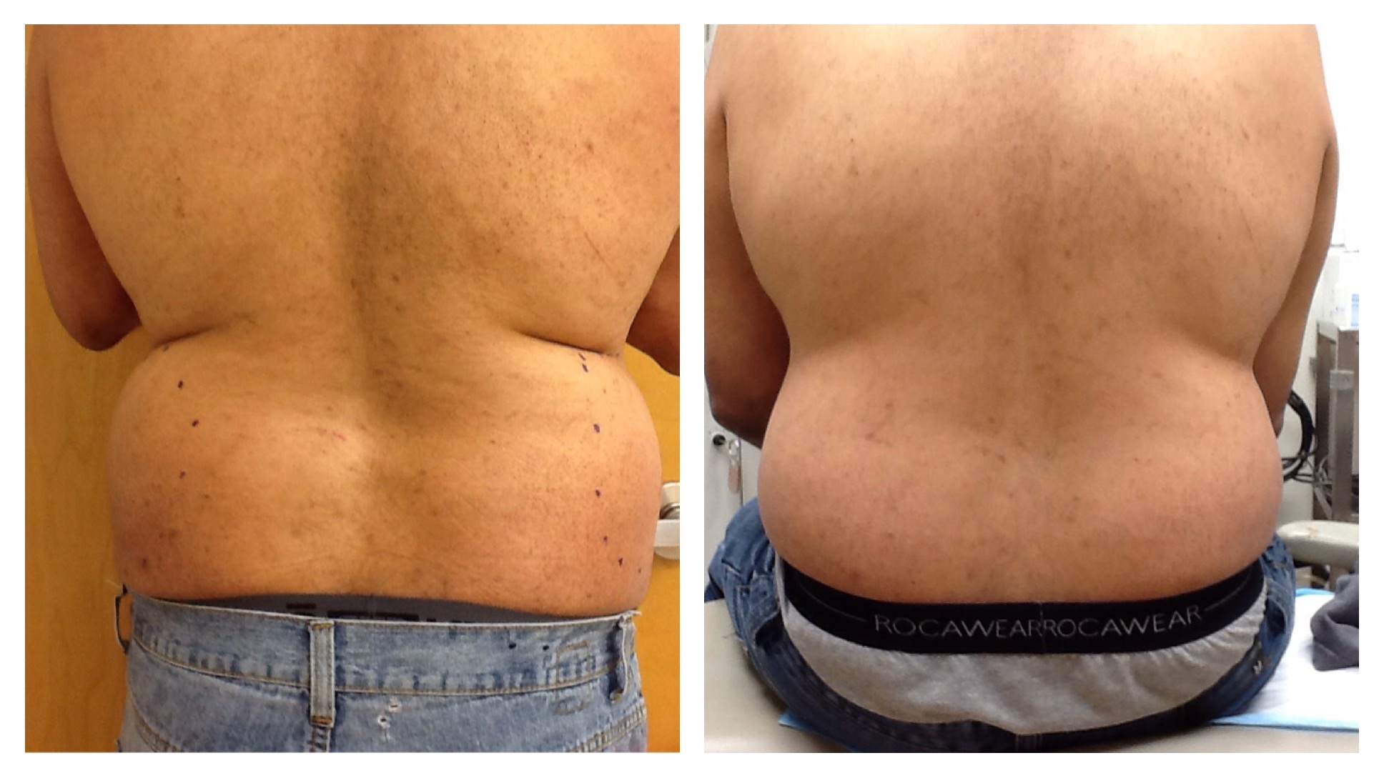 UltraShape for Mens Love Handles in Boston and Rhode Island
