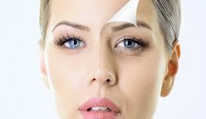 Radiesse for cheeks, nasal folds
