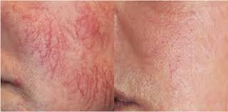 Remove Spider Veins on Face, Cheeks, Nose