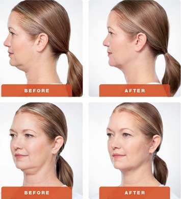 KYBELLA® DOUBLE CHIN TREATMENT