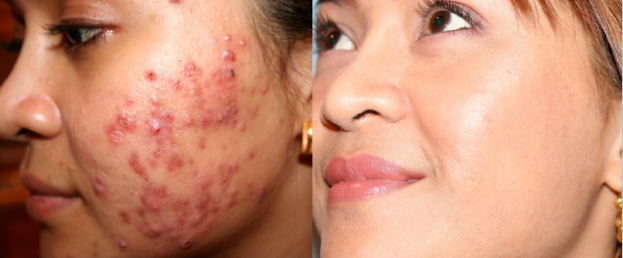 Smoothbeam Laser for Acne