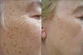 Brown Age Spots Sun Damage Freckle Removal