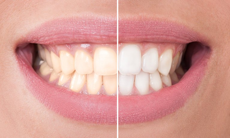 split screen image of teeth whitening